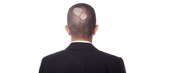 Get Rid Of Ringworm Of The Scalp